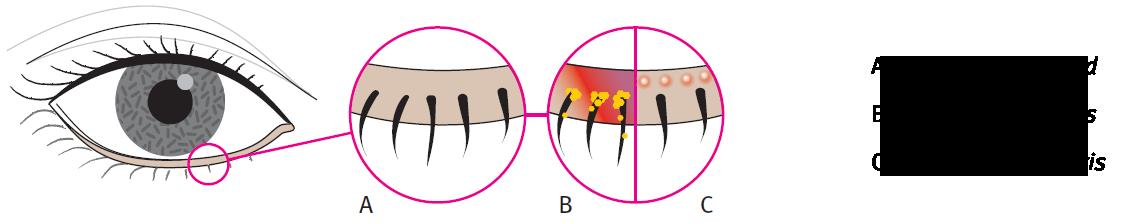 Uitleg blefaritis