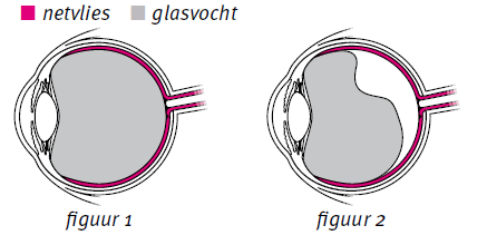 Glasvochtloslating